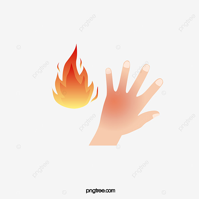 Cartoon Hand Burns, Cartoon Burns, Hand Burns, Hospital Icon PNG Image for Free Download