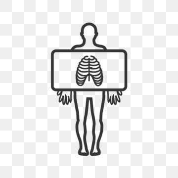 Chest X Ray Clipart   Free Images at Clker.com - vector clip art online,  royalty free & public domain