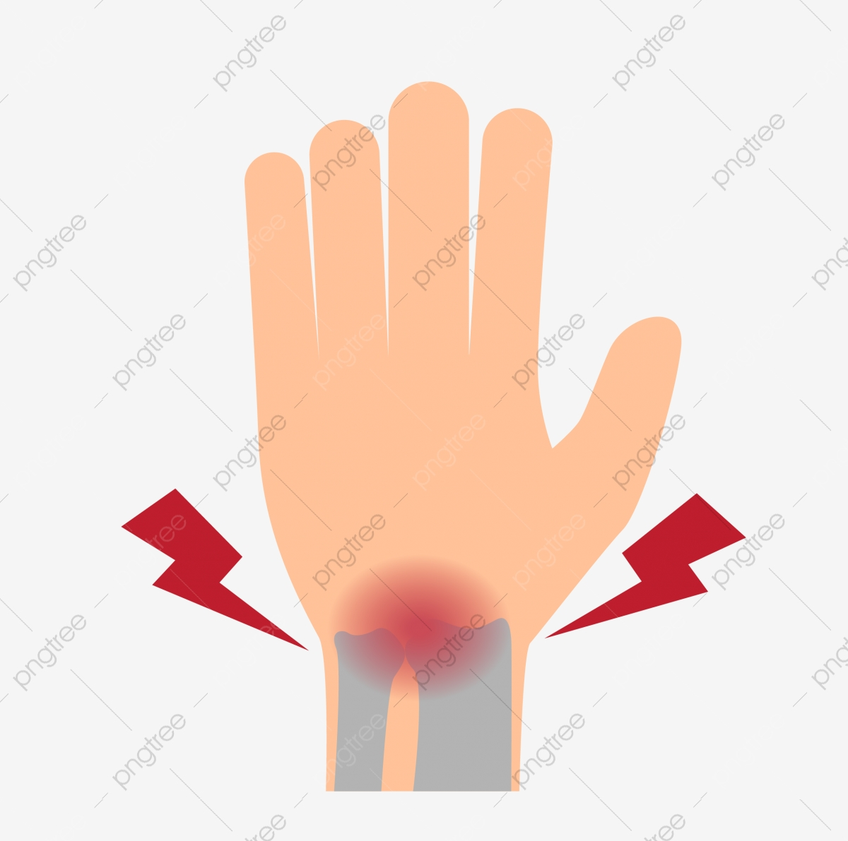 Injured Injured Hand Fracture Joint Bone Injury Wrist Wrist Injury Png And Vector With Transparent Background For Free Download Similar with lady finger png. https pngtree com freepng injured injured hand fracture joint 3921488 html