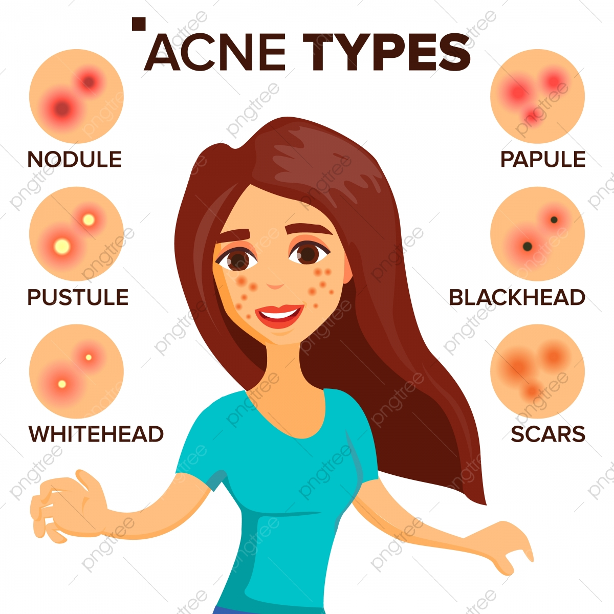 Acne Types Vector Girl With Acne Skin Care Treatment Healthy Nodule Whitehead Isolated Flat Cartoon Character Illustration Girl Female Acne Png And Vector With Transparent Background For Free Download