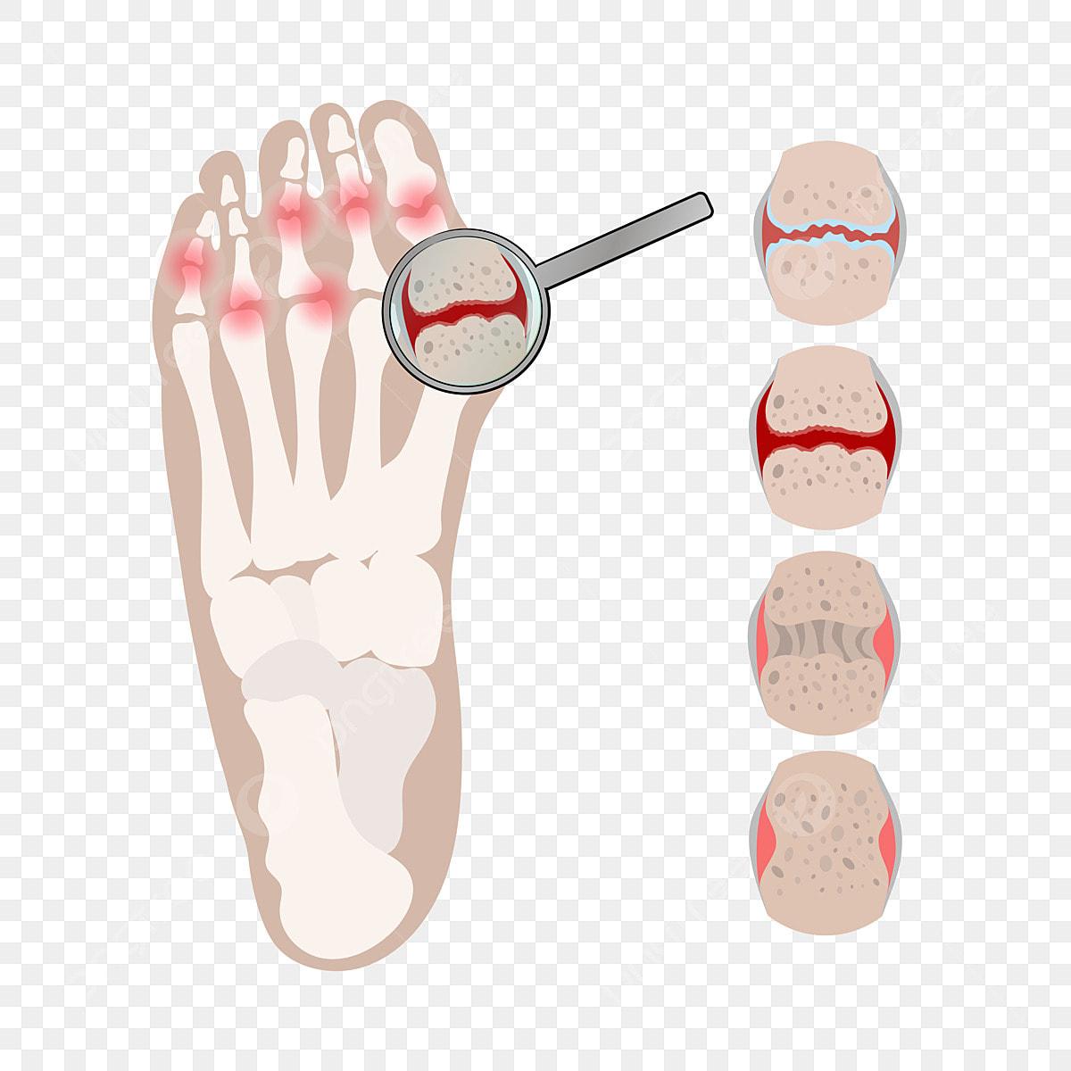 Arthritis Leg Rheumatoid Kronik Penyakit Perubatan Gambar