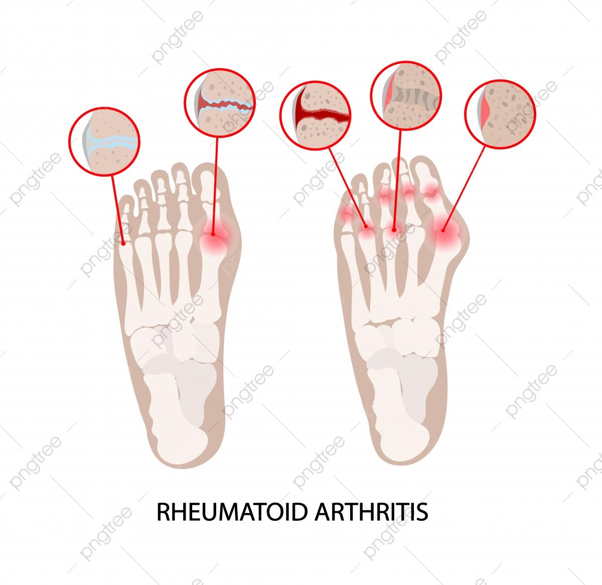 Rheumatoid Disease Leg Artritis Kronik Penyakit Perubatan