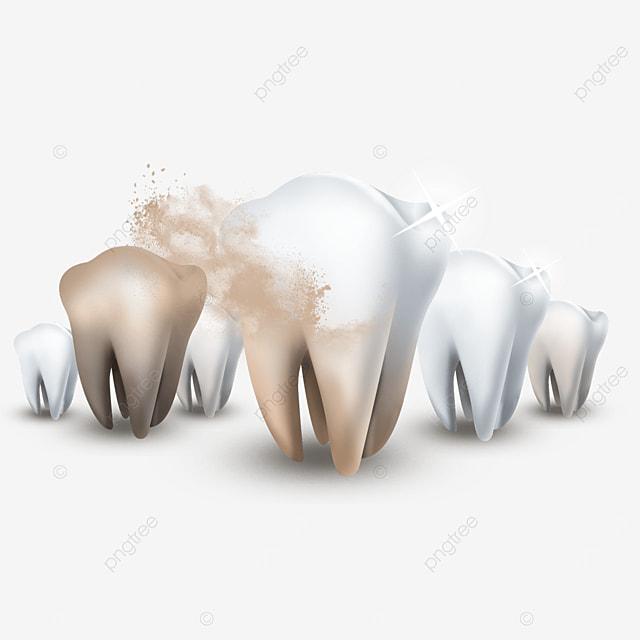 remove plaque light effect healthy teeth