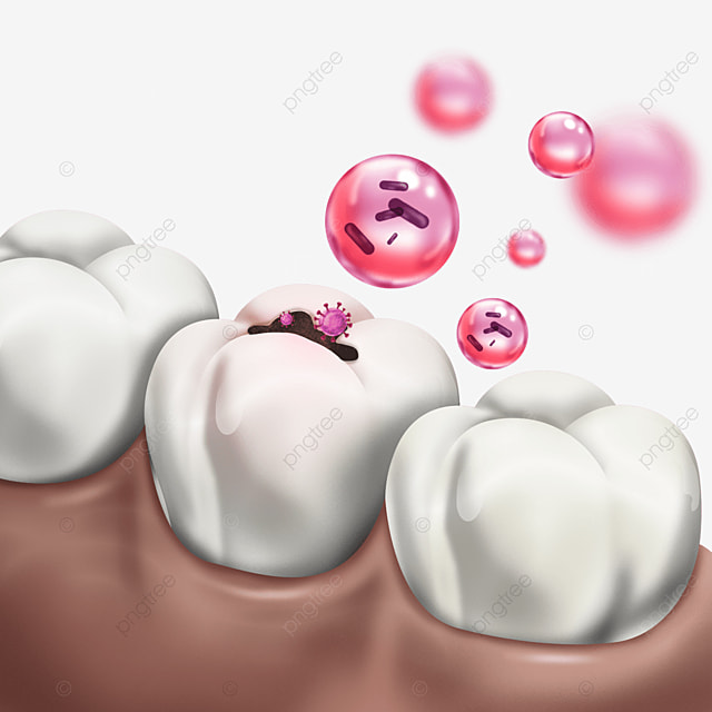 tooth decay red bacteria light effect dental health
