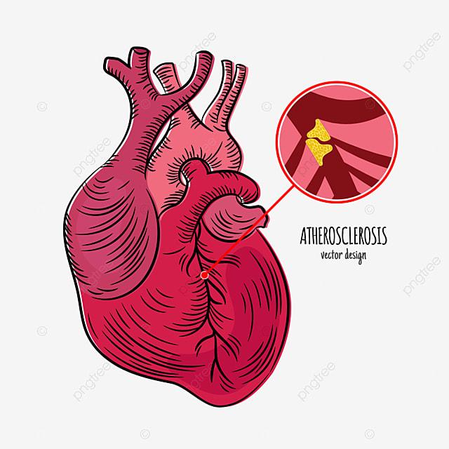 atherosclerosis disease chronic illness medicine education diagram vector scheme human hand draw vector illustration