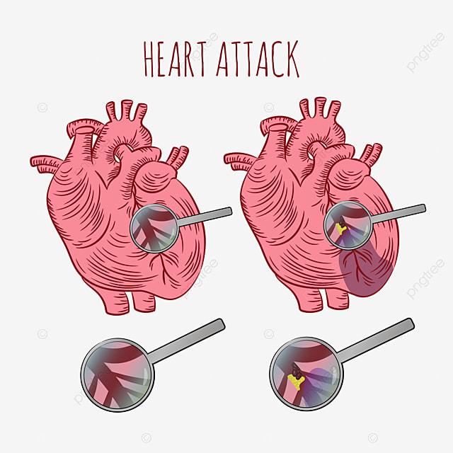 heart attack atherosclerosis chronic disease medicine education diagram vector scheme human hand draw vector illustration